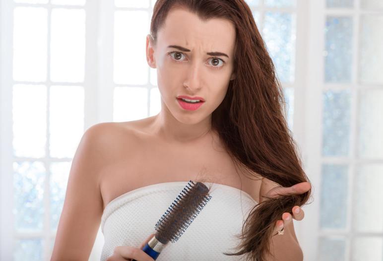 3 français sur quatre perdent leurs cheveux - IStock