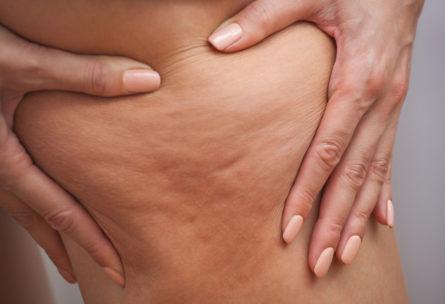 astuces naturelles pour combattre la cellulite