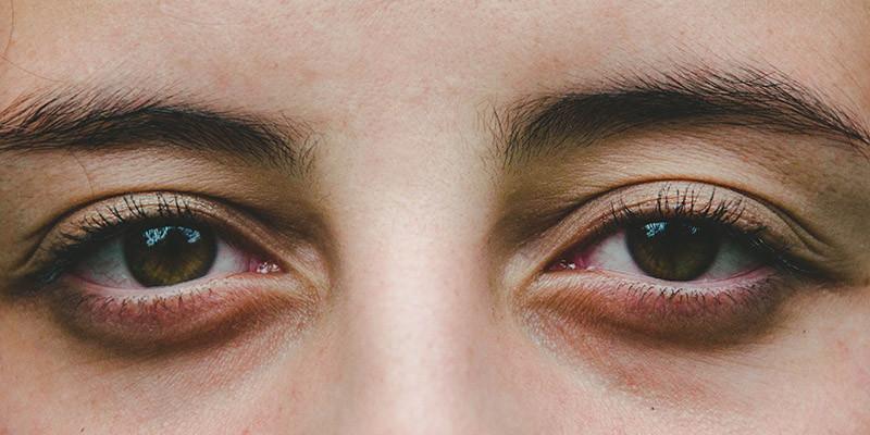 Complications des yeux (Pixabay)