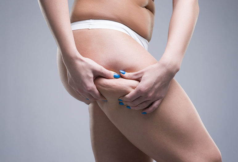Solution contre la cellulite (iStock)